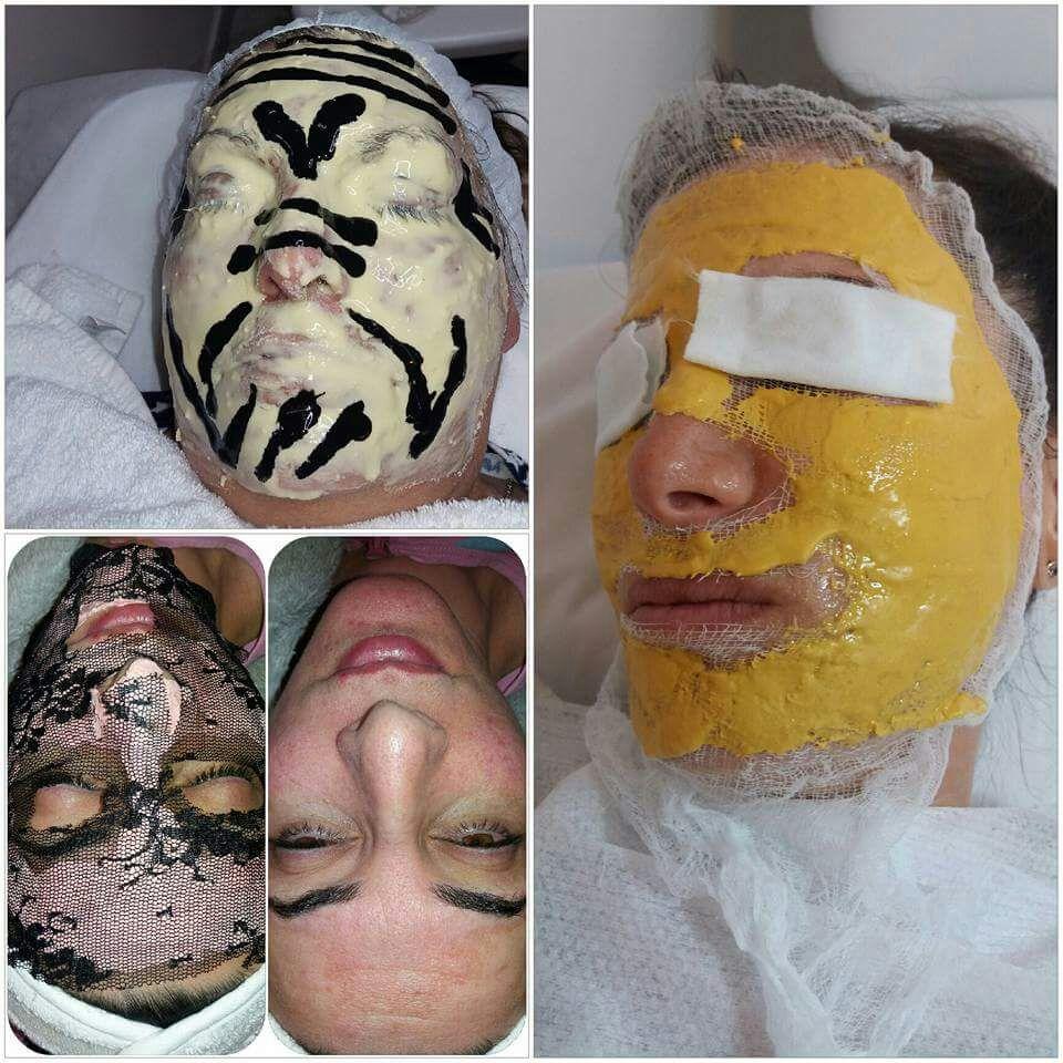 טיפולי פנים שרון קידר