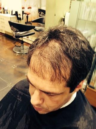 הדמיית שיער לגברים יורם בן עמי