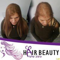 תמונות מילוי שיער דליל לנשים - חמודי דבדוב מסלון הייר ביוטי בעכו