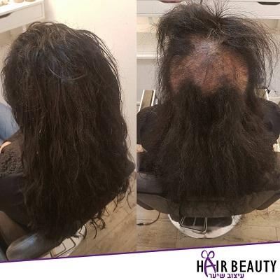 מילוי שיער דליל חמודי (1) - Copy
