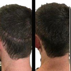 יוגב אלפסי - הדמיית שיער נתיבות