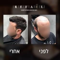 רשת רפאל פתרונות שיער לגבר