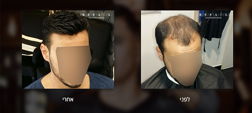 יחידות שיער לגברים –הבחירה הכי מתאימה לך