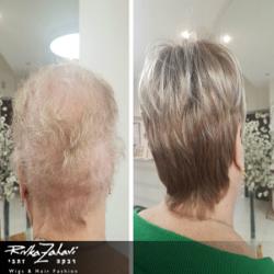 פתרונות לאובדן שיער אצל חולות סרטן