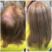 מילוי שיער דליל בחיפה – פתרונות לשיער דליל והתקרחות