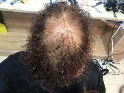 מילוי שיער דליל בחיפה – פתרונות ליער דליל והתקרחות