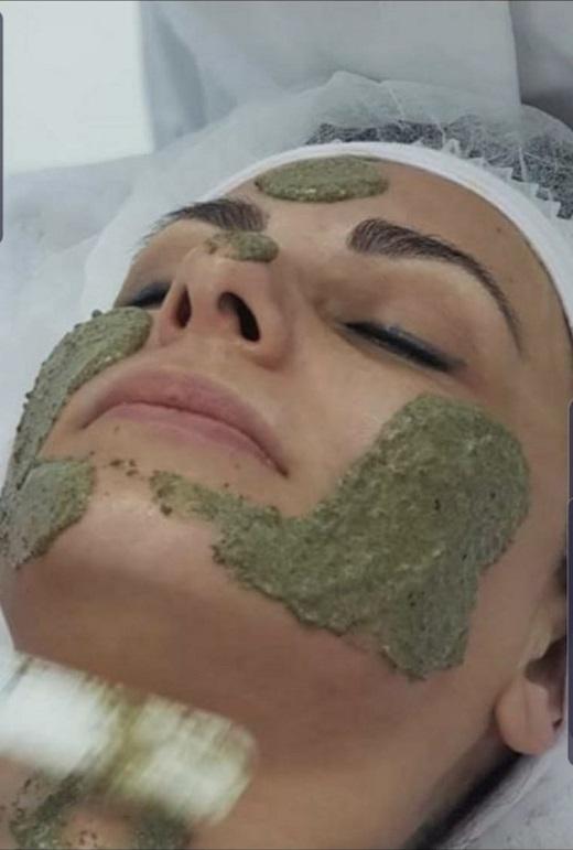 טיפול פילינג ירוק באשקלון