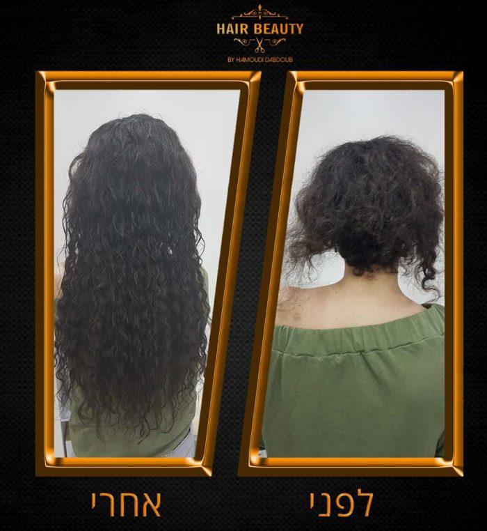 תוספות שיער בלייזר בצפון