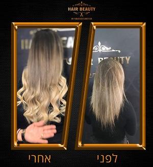 תוספות שיער בלייזר בעכו