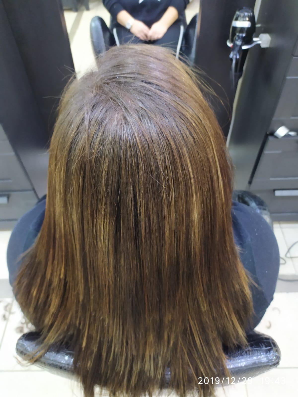 שיקום שיער בטכנולוגית R4 אחרי