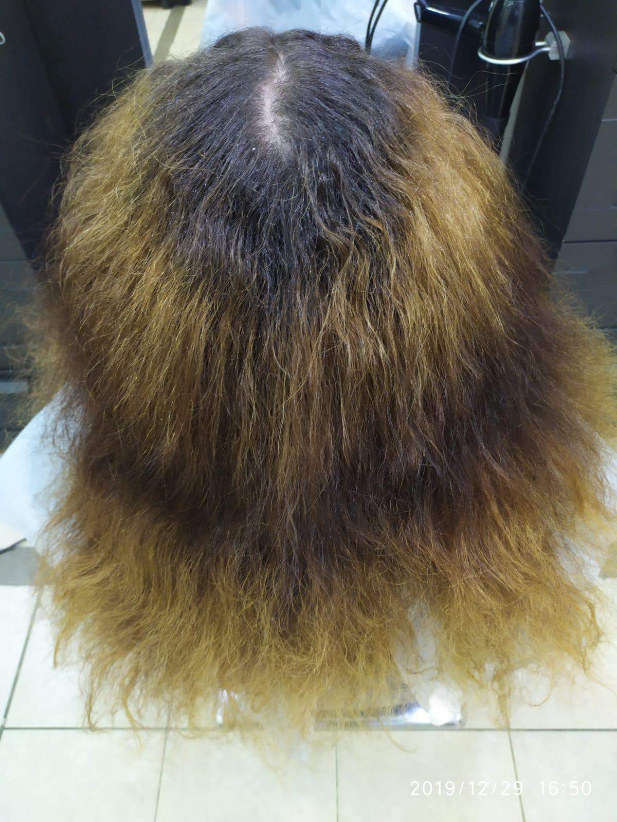 שיקום שיער בטכנולוגית R4 לפני